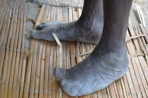 Leprosy affected feet (2)